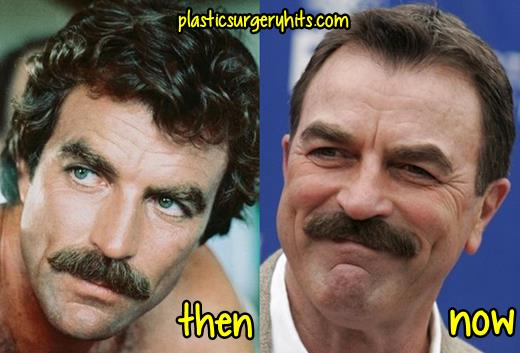 Tom Selleck Plastic Surgery Speculation