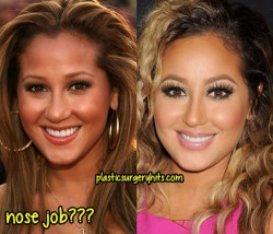 Adrienne Bailon Nose Job