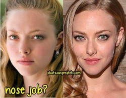 Amanda Seyfried Nose Job