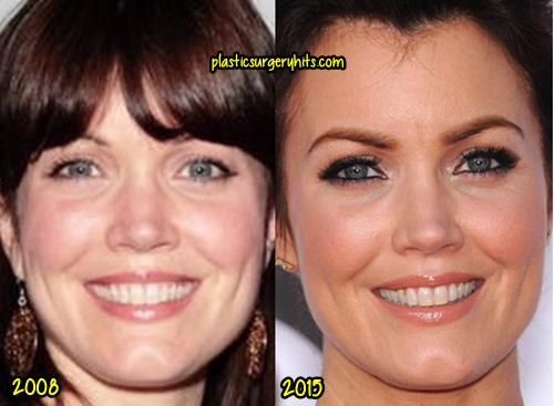 Bellamy Young Plastic Surgery