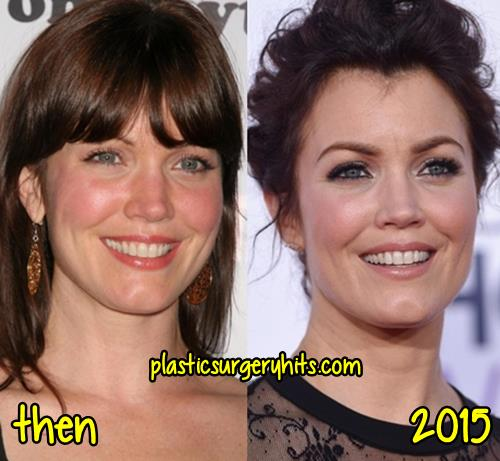 Bellamy Young plastic surgery fact or rumor