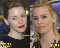 Elizabeth Banks Plastic Surgery Fact or Rumor