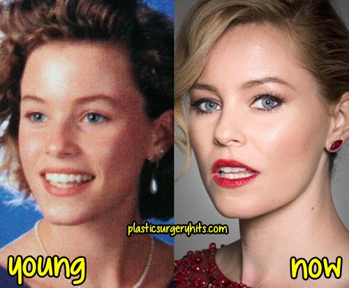 Elizabeth Banks Plastic Surgery