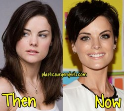 Jaimie Alexander Plastic Surgery Fact or Rumor