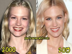 January Jones Plastic Surgery Nose job