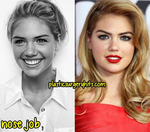 Kate Upton Plastic Surgery Through nose job