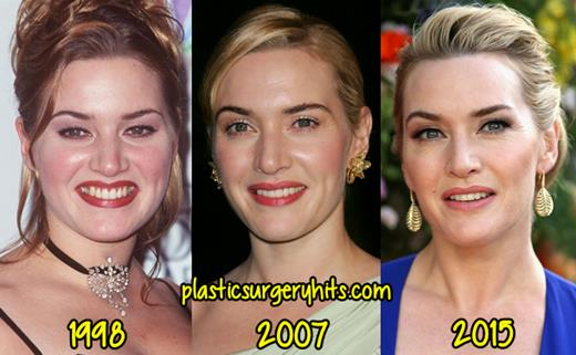 Kate Winslet Plastic Surgery Fact or Rumor