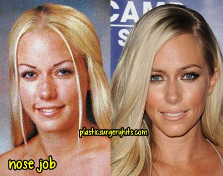 Kendra Wilkinson Nose Job