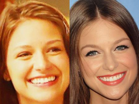 Melissa Benoist Jaw Surgery Speculation