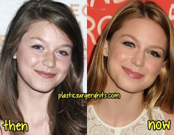 Melissa Benoist Plastic Surgery Fact or Rumor