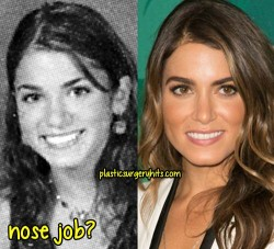 Nikki Reed Plastic Surgery Fact or Rumor
