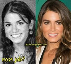 Nikki Reed Plastic Surgery Fact or Rumor