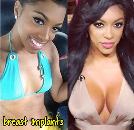 Porsha Stewart Plastic Surgery Breast Implants
