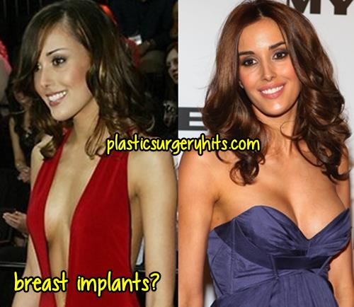 Rebecca Judd Breast Implants