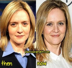 Samantha Bee Plastic Surgery Fact or Rumor