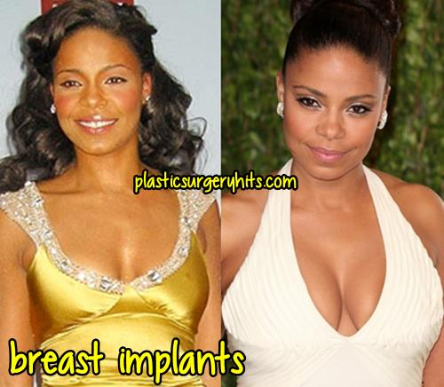 Sanaa Lathan Breast Implants