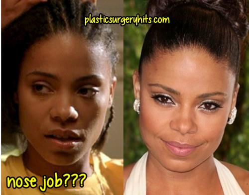 Sanaa Lathan plastic Surgery through nose job