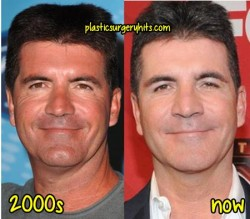 Simon Cowell Plastic Surgery Fact or Rumor