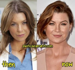 Ellen Pompeo Plastic Surgery Fact or Rumor