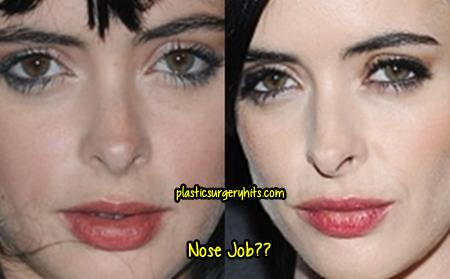 Krysten Ritter Nose Job