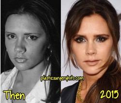 Victoria Beckham Plastic Sugery Before and After