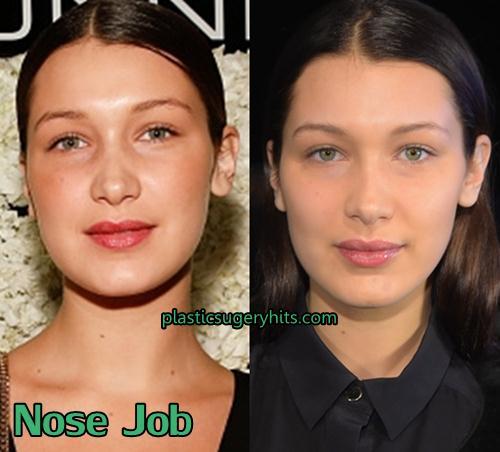 Bella Hadid Nose Job