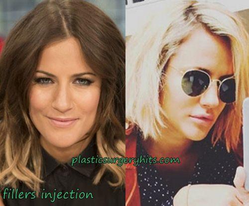 Caroline Flack Plastic Surgery