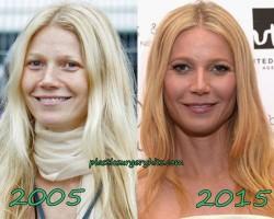 Gwyneth Paltrow Plastic Surgery Fact or Rumor