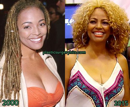 Kim Fields Breast Reduction