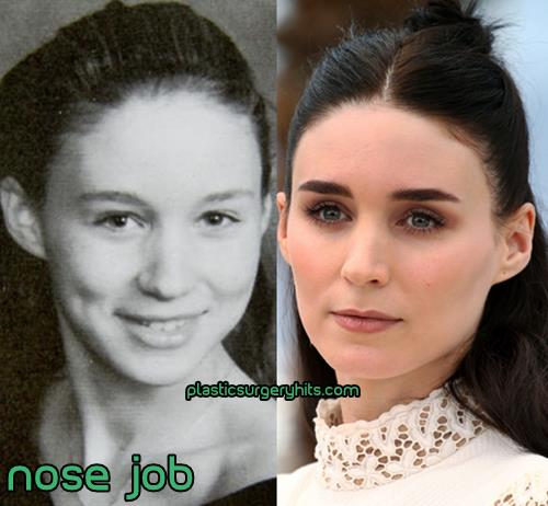 Rooney Mara Nose Job