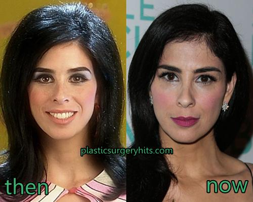 Sarah Silverman Plastic Surgery Fact or rumor