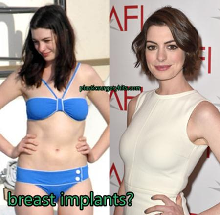 Anne Hathaway Breast Implants