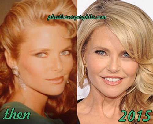 Christie Brinkley Facelift