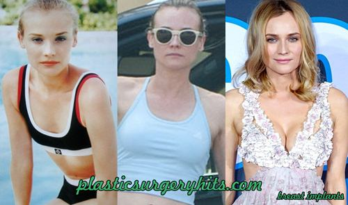 Diane Kruger Breast Implants