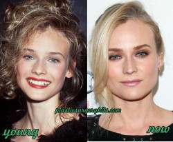 Diane Kruger Plastic Surgery