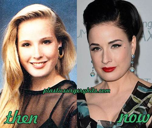 Dita von Teese Plastic Surgery Before and after