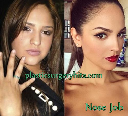 Eiza Gonzalez Plastic Surgery Nose Job