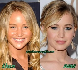Jennifer Lawrence Plastic Surgery Speculation