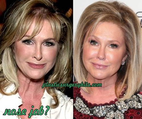 Kathy Hilton Nose Job