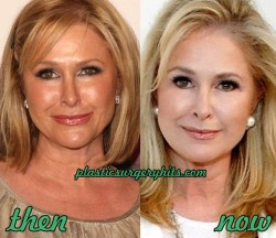 Kathy Hilton Plastic Surgery Before and After