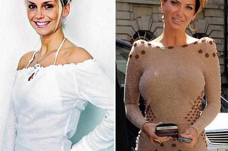 Sarah Harding Breast Implants