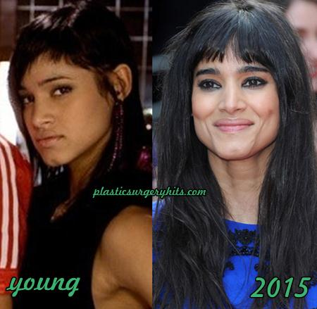 Sofia Boutella Plastic Surgery Botox Speculation