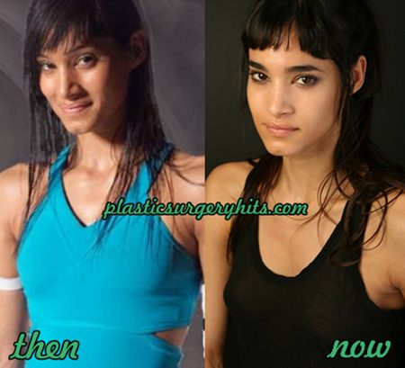 Sofia Boutella Plastic Surgery fact or Rumor