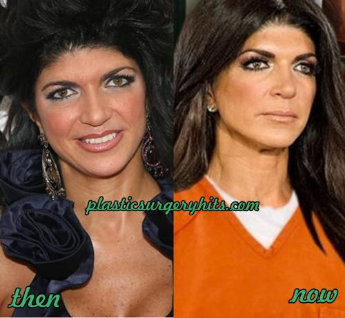 Teresa Giudice Plastic Surgery Before and After