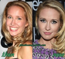 Anna Camp Plastic Surgery