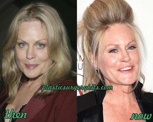 Beverly D'Angelo Plastic Surgery Facelift