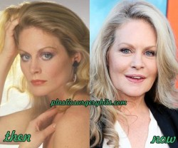 Beverly D'Angelo Plastic Surgery before and After