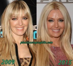 Erika Jayne Plastic Surgery Fact or Rumor