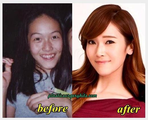 Jessica Jung Plastic Surgery