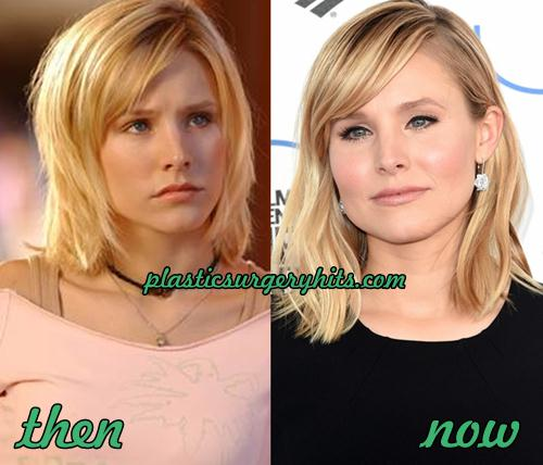 Kristen Bell Plastic Surgery Fact or Rumor
